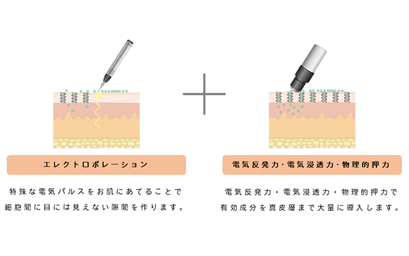 【エレクトロポレーション】特殊な電気パルスをお肌にあてることで細胞間に目には見えない隙間作ります。+【電気反発力・電気浸透力・物理的押力】電気反発力・電気浸透力・物理的押力で有効成分を真皮層まで大量に導入します。